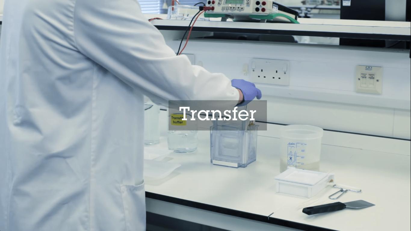 نقل البروتينات إلى الغشاء